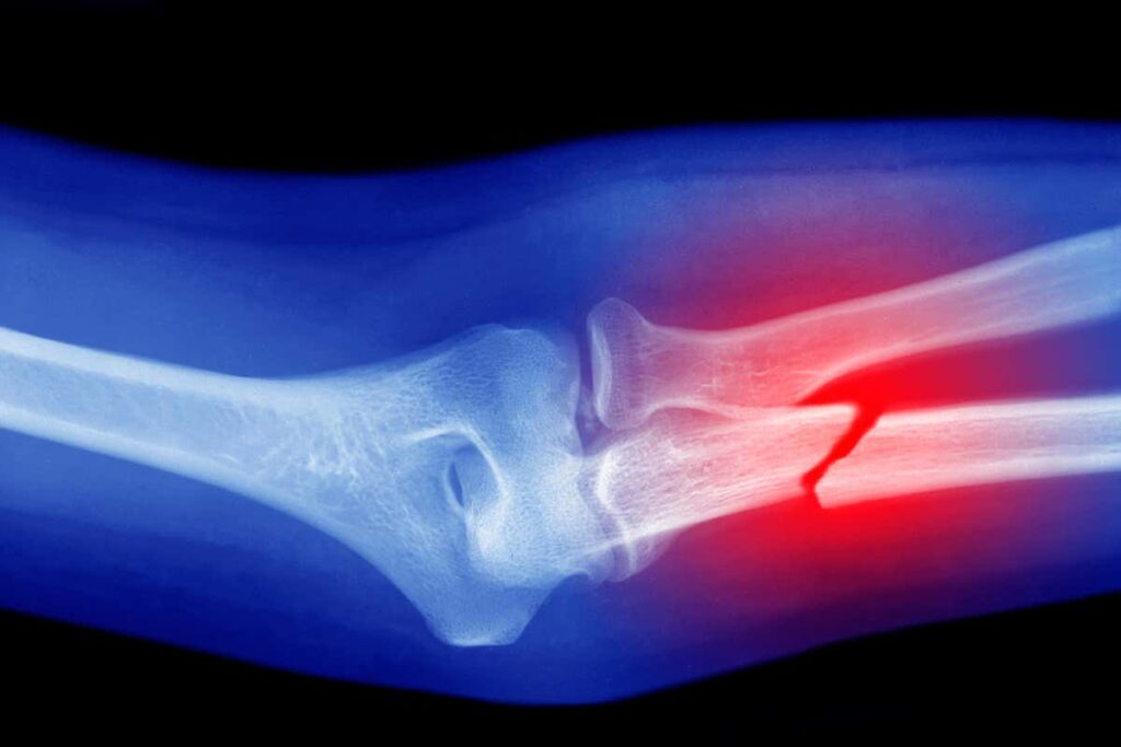 Types of Broken Bones