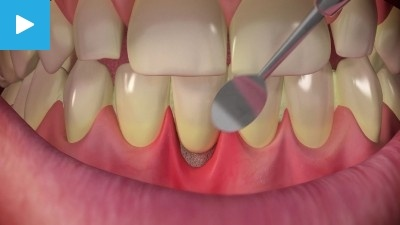 Sensitive Teeth: Causes, Symptoms, Treatments- Dr. Sunny